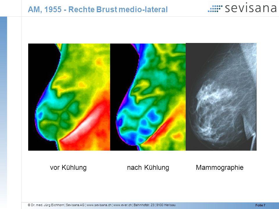AM, 1955 - Rechte Brust medio-lateral