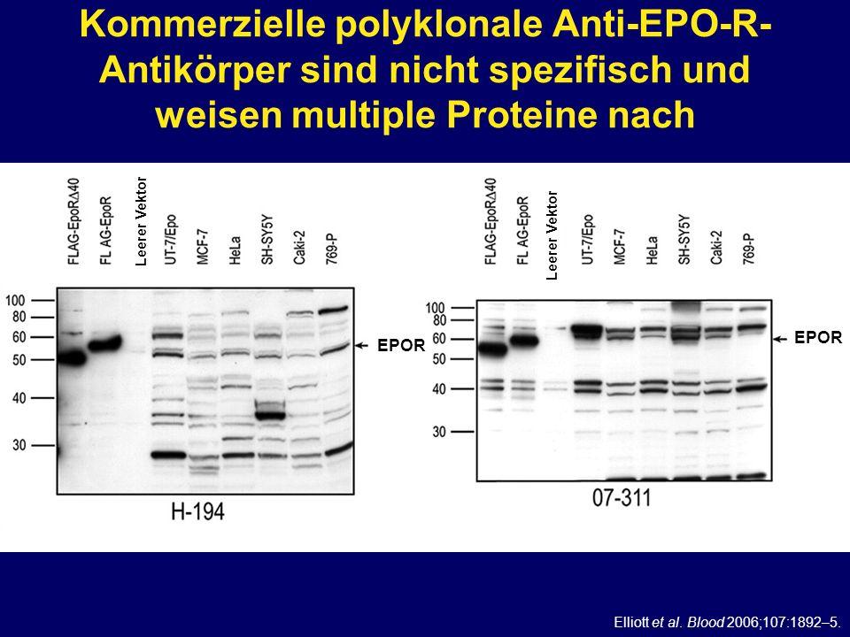 Kommerzielle polyklonale Anti-EPO-R- Antikörper sind nicht spezifisch und weisen multiple Proteine nach