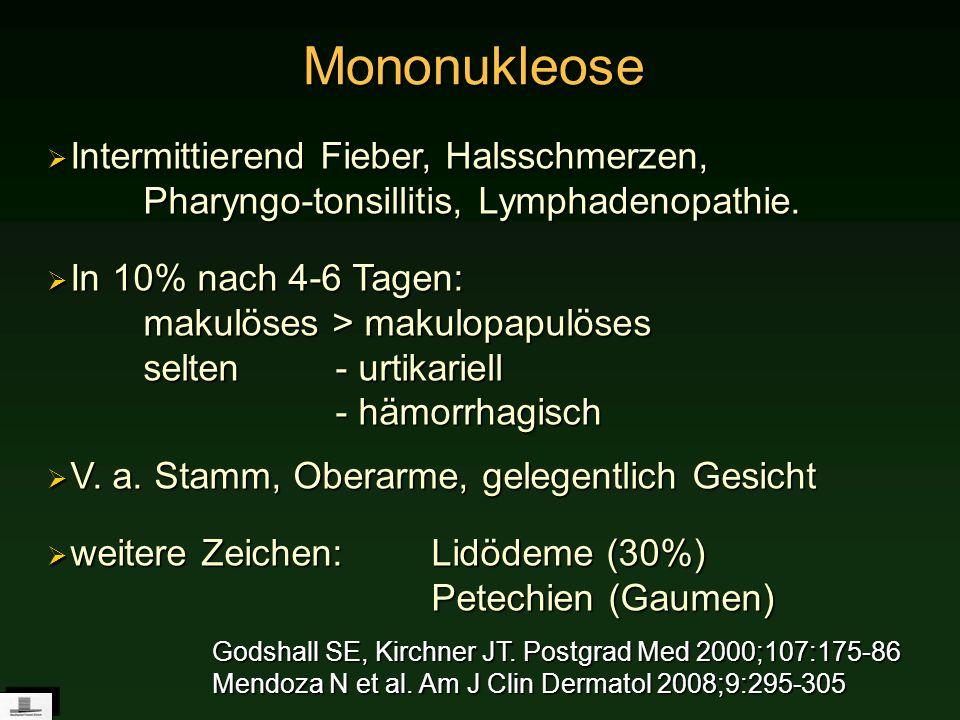Mononukleose Intermittierend Fieber, Halsschmerzen, Pharyngo-tonsillitis, Lymphadenopathie.