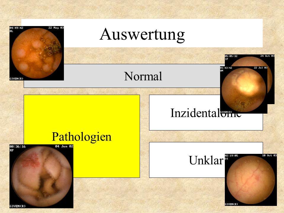 Auswertung Normal Pathologien Inzidentalome Unklar