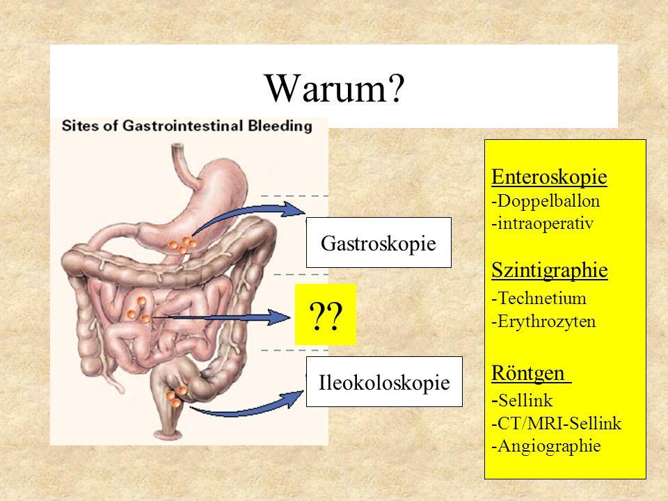 Warum Enteroskopie Szintigraphie Gastroskopie Röntgen -Sellink