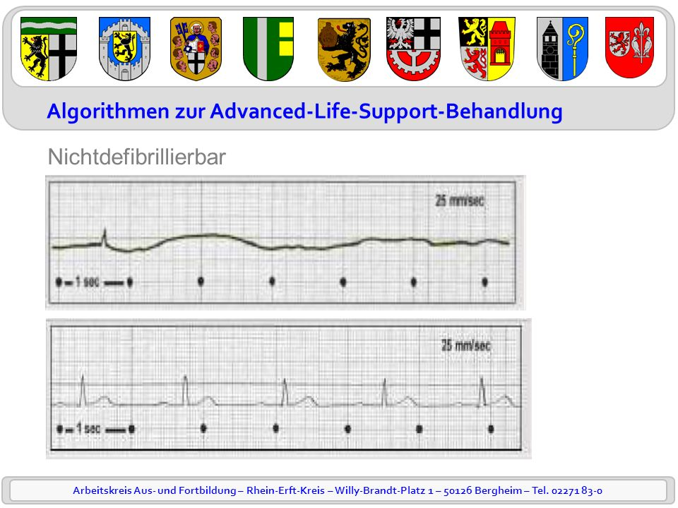 Algorithmen zur Advanced-Life-Support-Behandlung