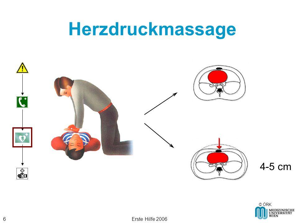 Herzdruckmassage 4-5 cm © ÖRK Erste Hilfe 2006