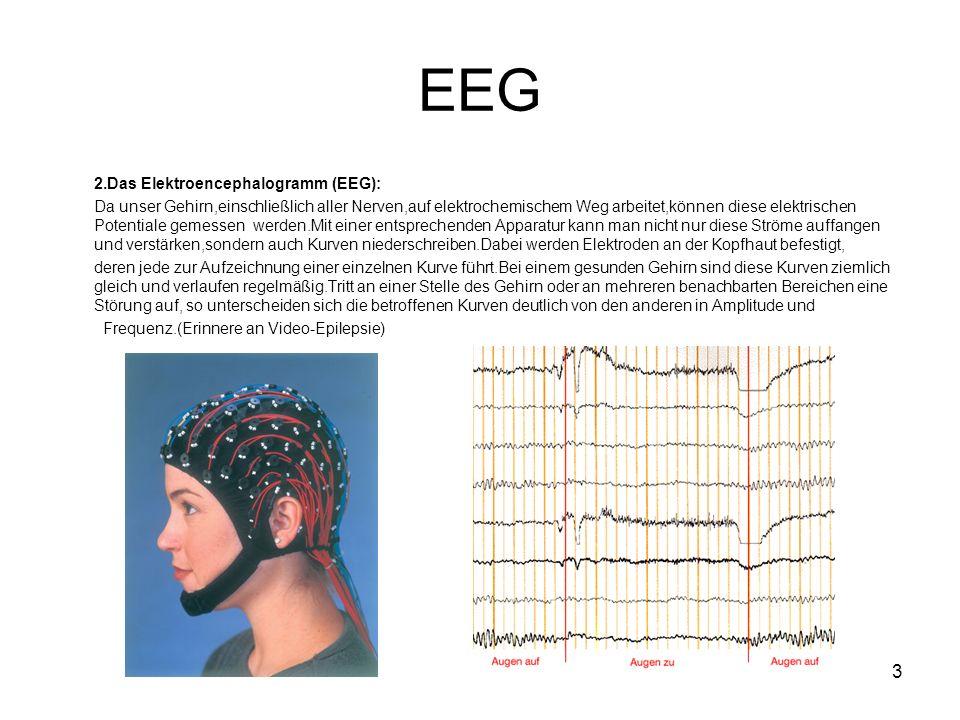 EEG 2.Das Elektroencephalogramm (EEG):