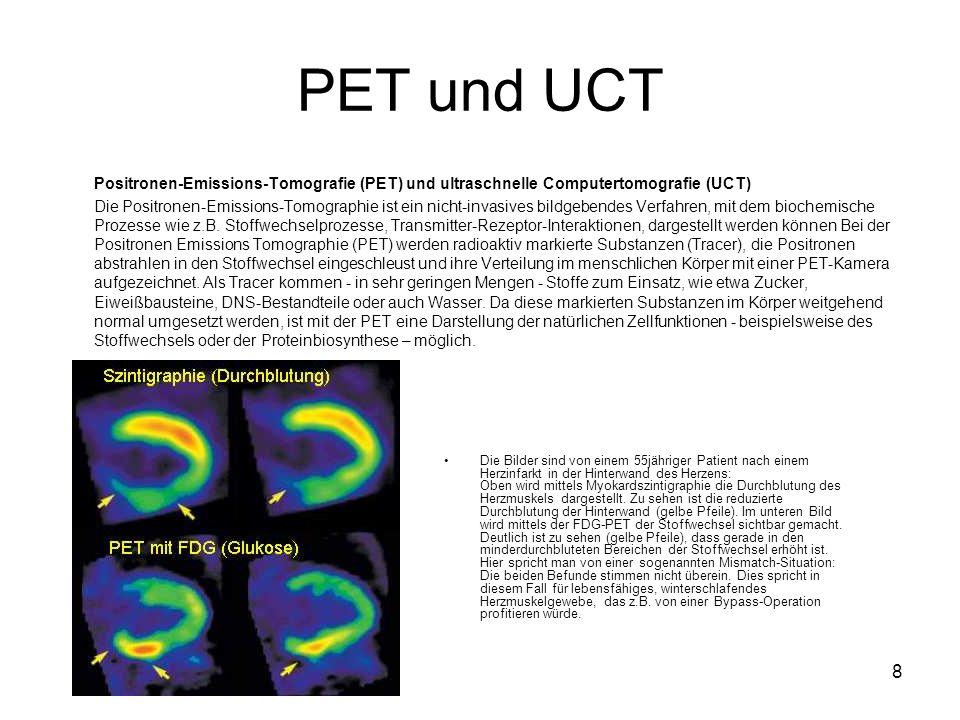 PET und UCT Positronen-Emissions-Tomografie (PET) und ultraschnelle Computertomografie (UCT)