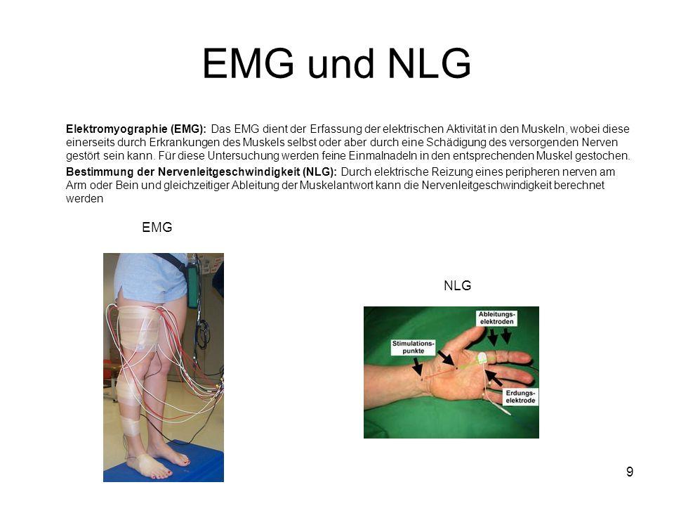 EMG und NLG