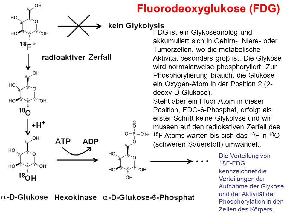 Fluorodeoxyglukose (FDG)