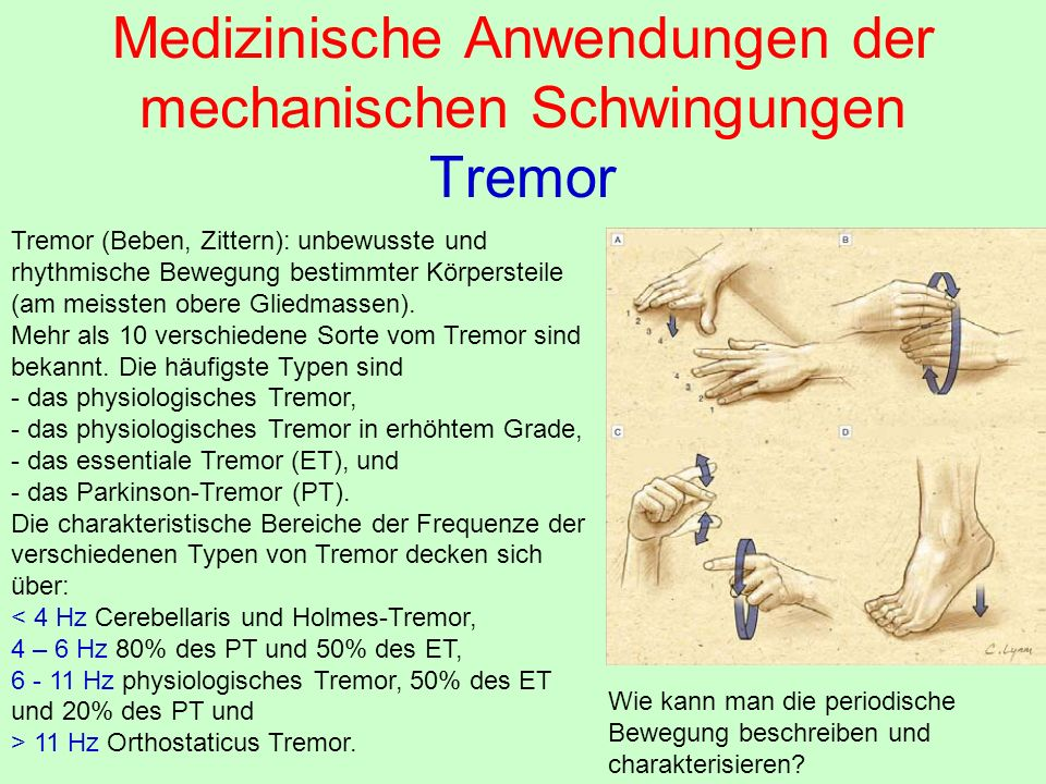 Medizinische Anwendungen der mechanischen Schwingungen Tremor