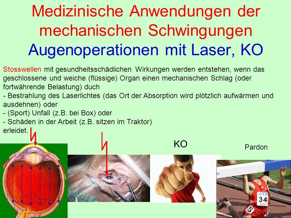 Medizinische Anwendungen der mechanischen Schwingungen Augenoperationen mit Laser, KO