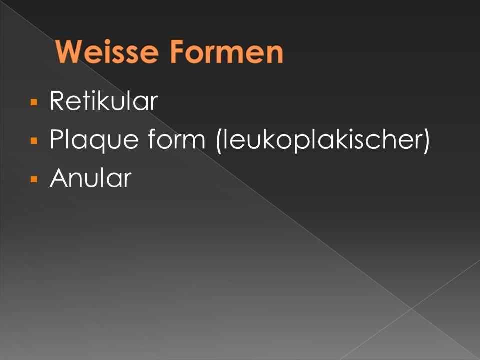 Weisse Formen Retikular Plaque form (leukoplakischer) Anular