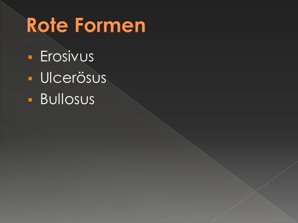 Rote Formen Erosivus Ulcerösus Bullosus