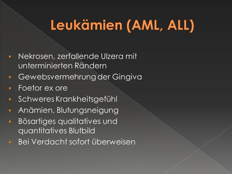 Leukämien (AML, ALL) Nekrosen, zerfallende Ulzera mit unterminierten Rändern. Gewebsvermehrung der Gingiva.