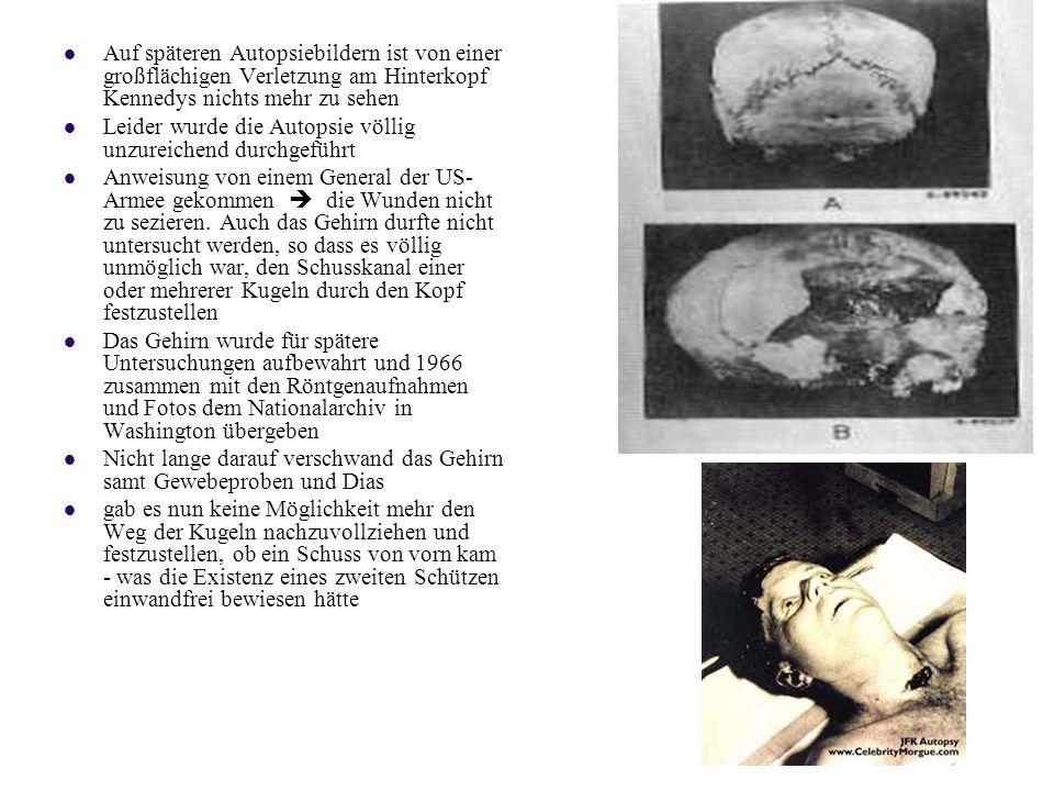 Auf späteren Autopsiebildern ist von einer großflächigen Verletzung am Hinterkopf Kennedys nichts mehr zu sehen
