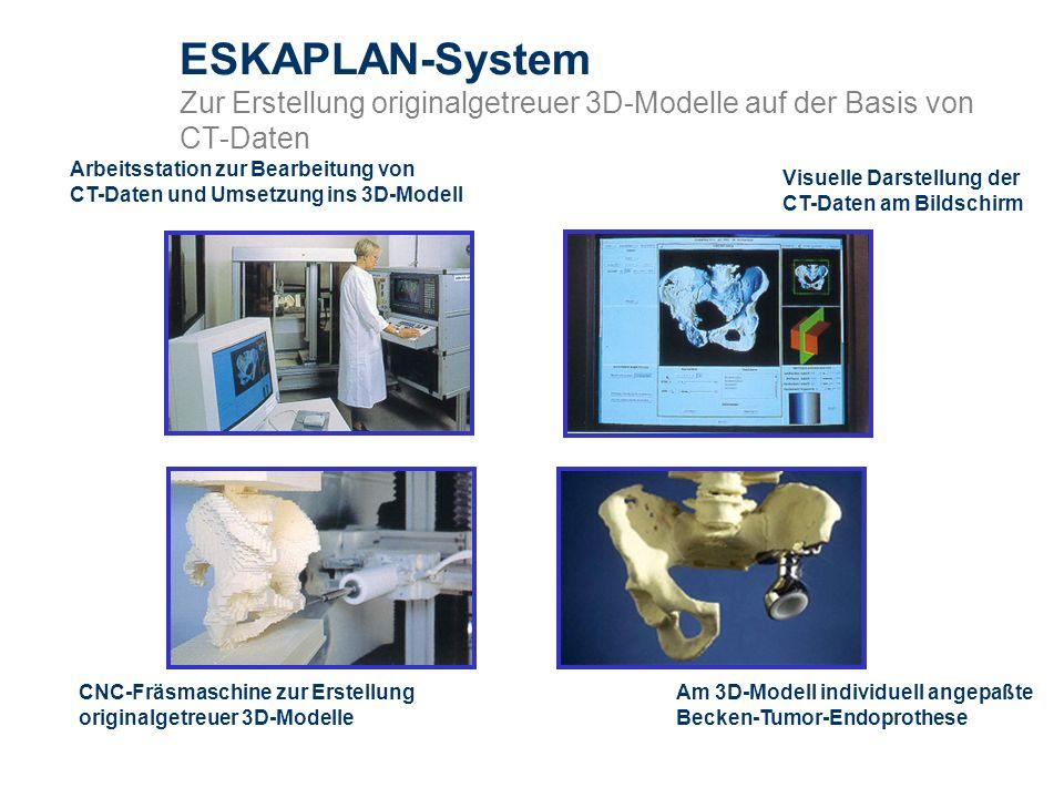 ESKAPLAN-System Zur Erstellung originalgetreuer 3D-Modelle auf der Basis von CT-Daten