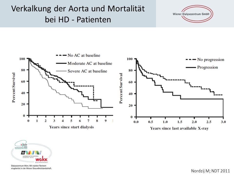 Verkalkung der Aorta und Mortalität bei HD - Patienten