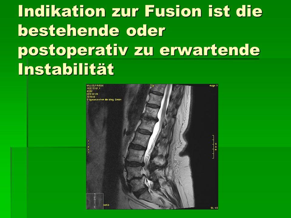 Indikation zur Fusion ist die bestehende oder postoperativ zu erwartende Instabilität
