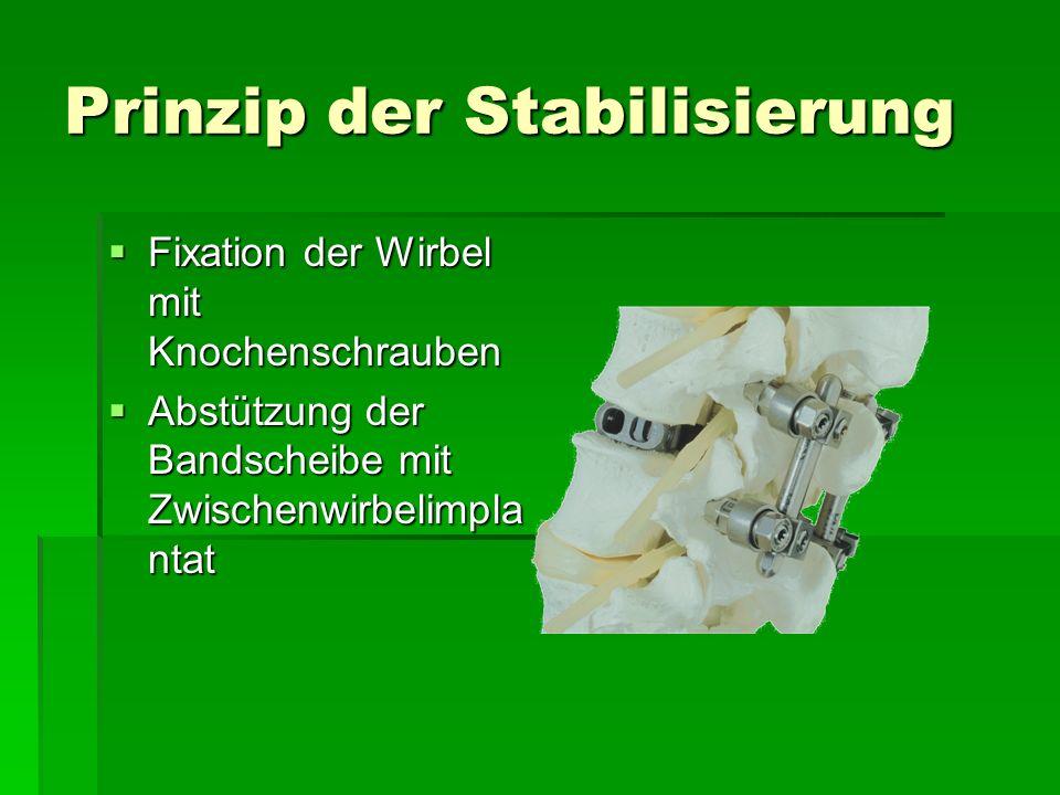 Prinzip der Stabilisierung