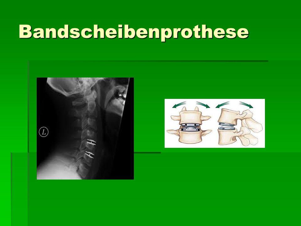 Bandscheibenprothese