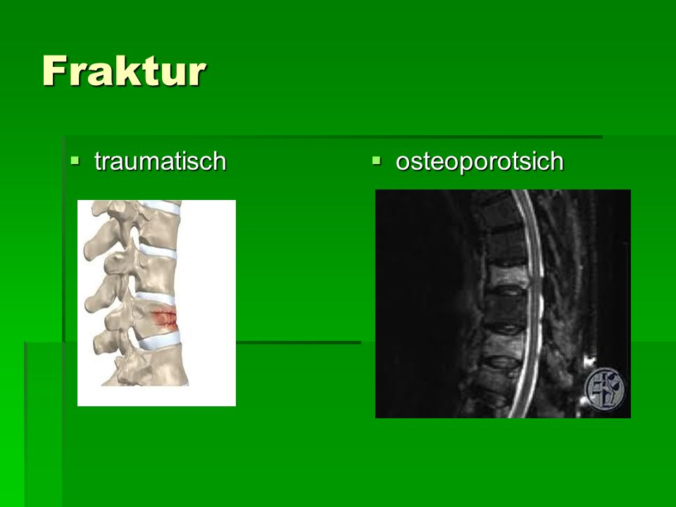 Fraktur traumatisch osteoporotsich