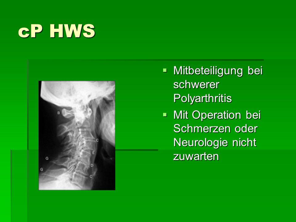 cP HWS Mitbeteiligung bei schwerer Polyarthritis