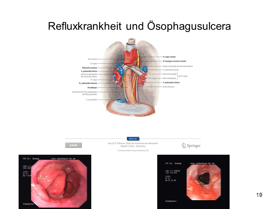Refluxkrankheit und Ösophagusulcera