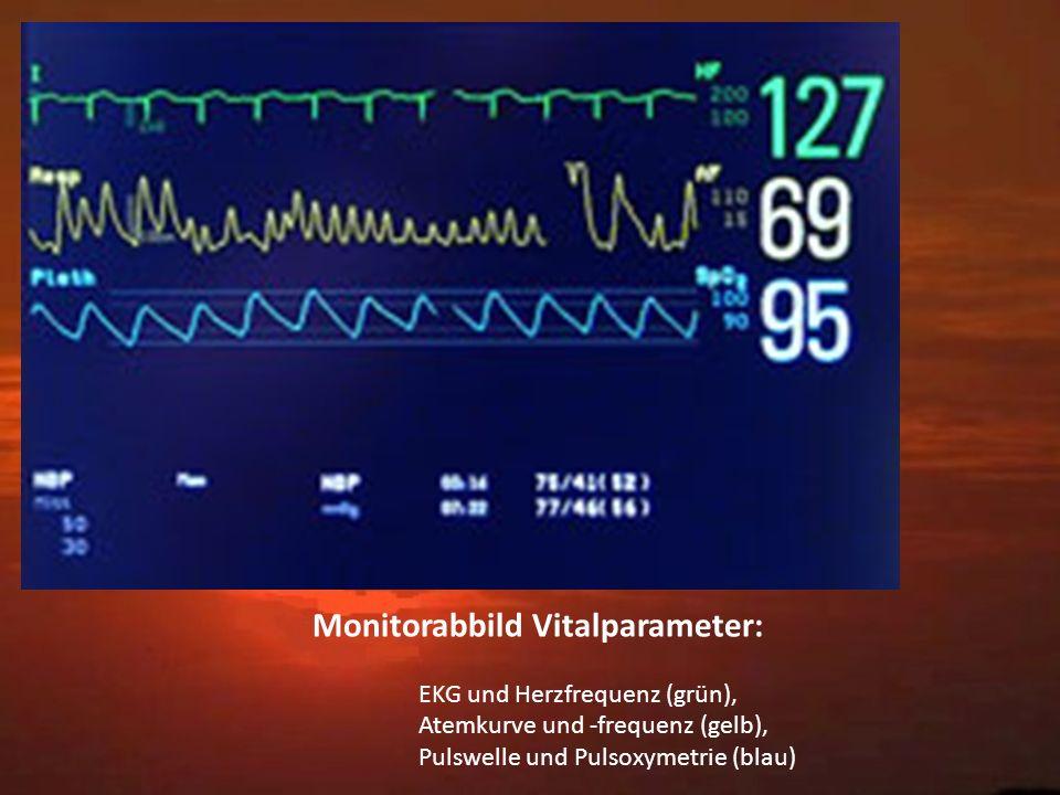 Monitorabbild Vitalparameter: