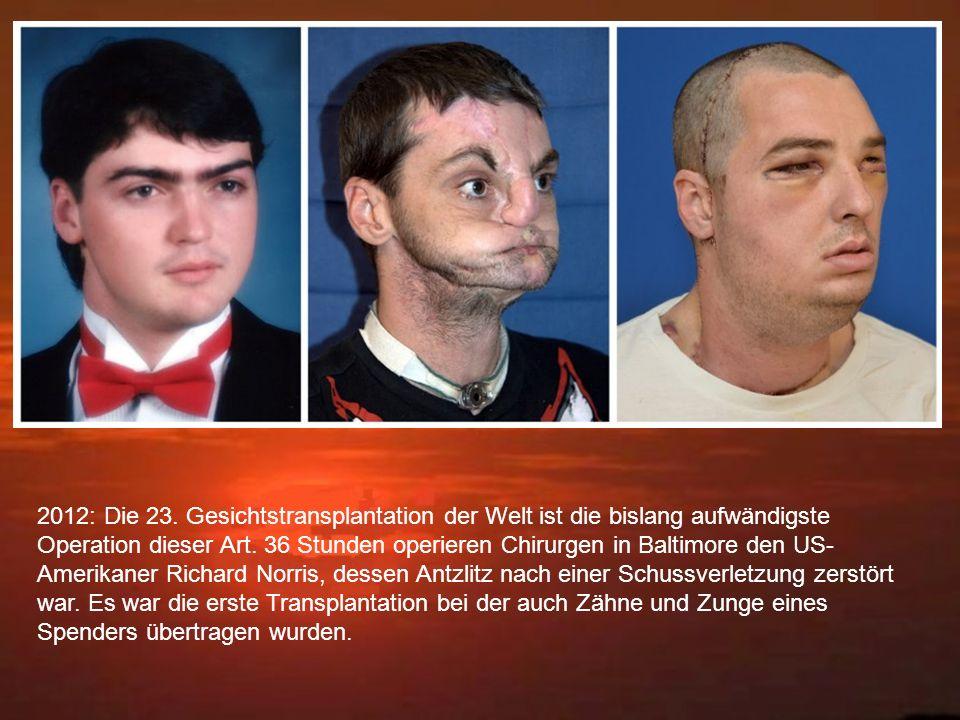 2012: Die 23. Gesichtstransplantation der Welt ist die bislang aufwändigste Operation dieser Art.