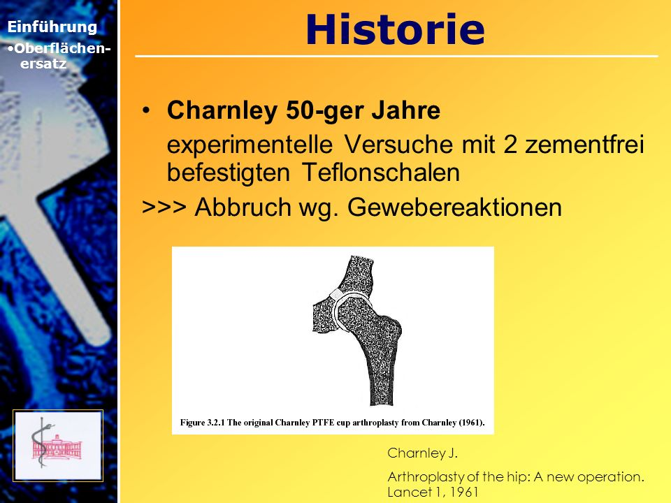 Historie Charnley 50-ger Jahre