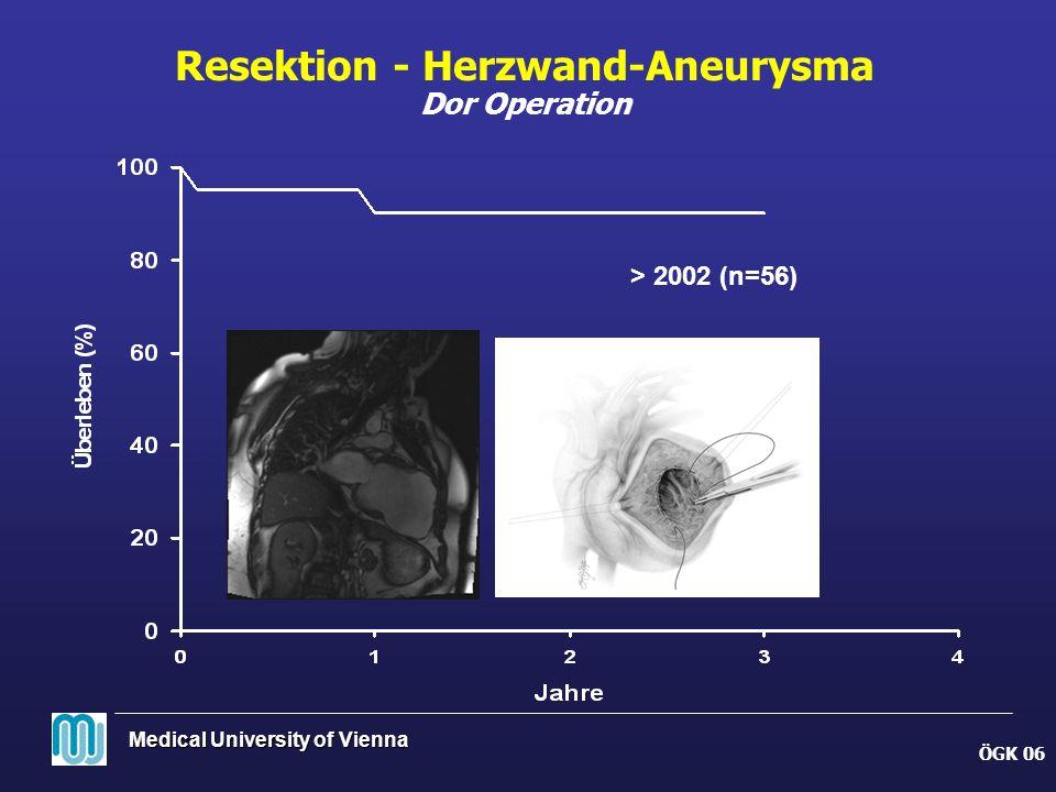 Resektion - Herzwand-Aneurysma