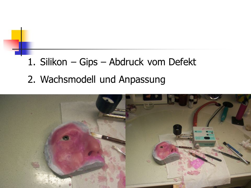 Silikon – Gips – Abdruck vom Defekt