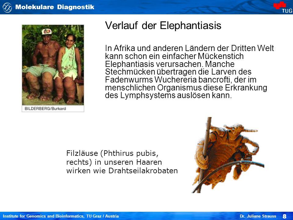 Verlauf der Elephantiasis