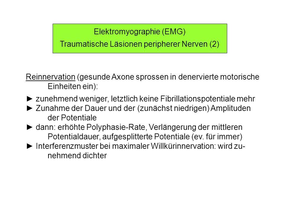 Elektromyographie (EMG) Traumatische Läsionen peripherer Nerven (2)