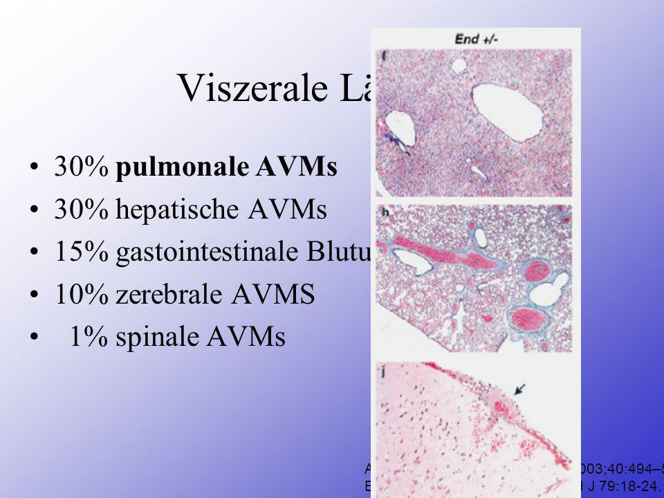 Viszerale Läsionen 30% pulmonale AVMs 30% hepatische AVMs
