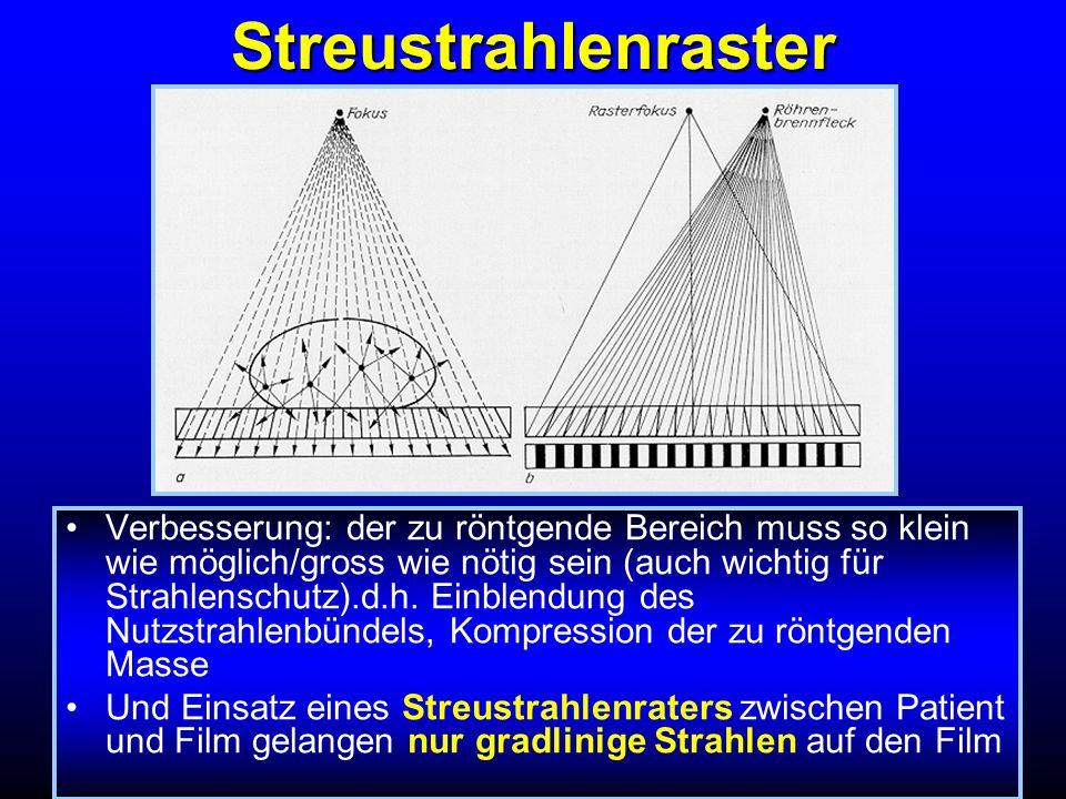 Streustrahlenraster
