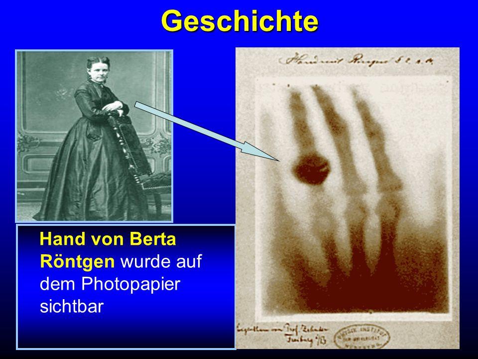 Geschichte Hand von Berta Röntgen wurde auf dem Photopapier sichtbar