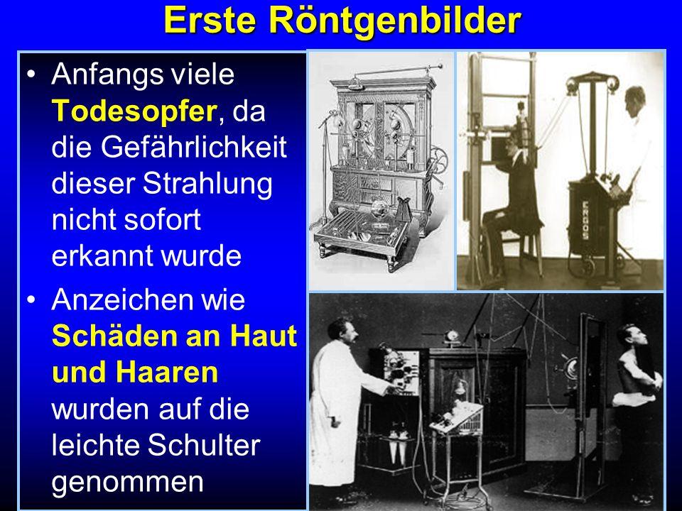 Erste Röntgenbilder Anfangs viele Todesopfer, da die Gefährlichkeit dieser Strahlung nicht sofort erkannt wurde.