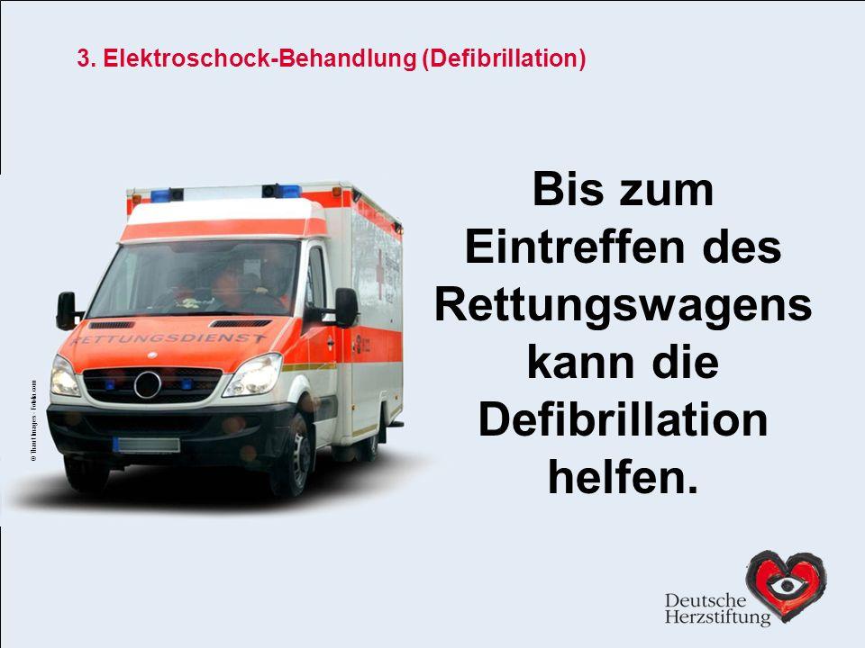 3. Elektroschock-Behandlung (Defibrillation)