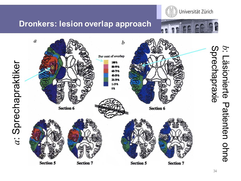 Dronkers: lesion overlap approach