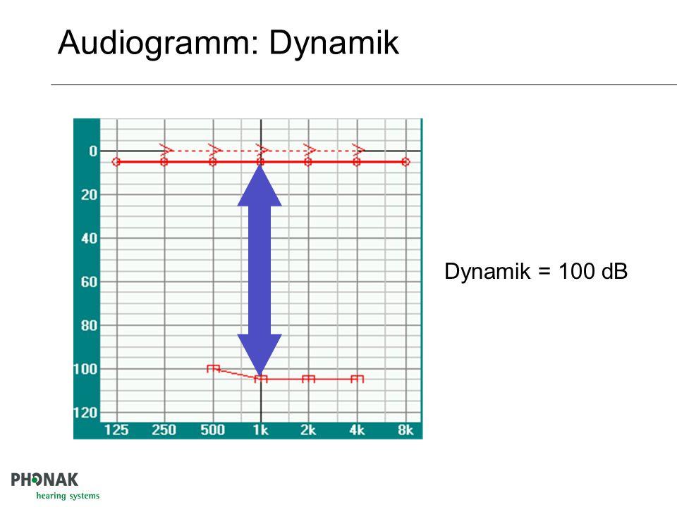 Audiogramm: Dynamik Dynamik = 100 dB