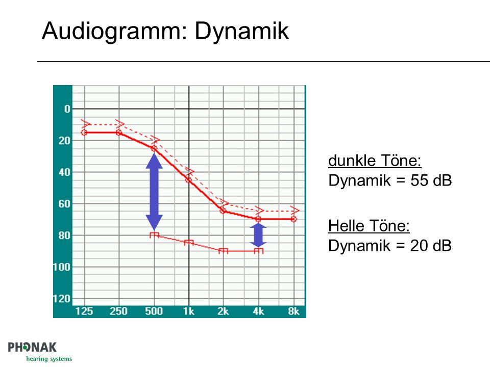 Audiogramm: Dynamik dunkle Töne: Dynamik = 55 dB Helle Töne: