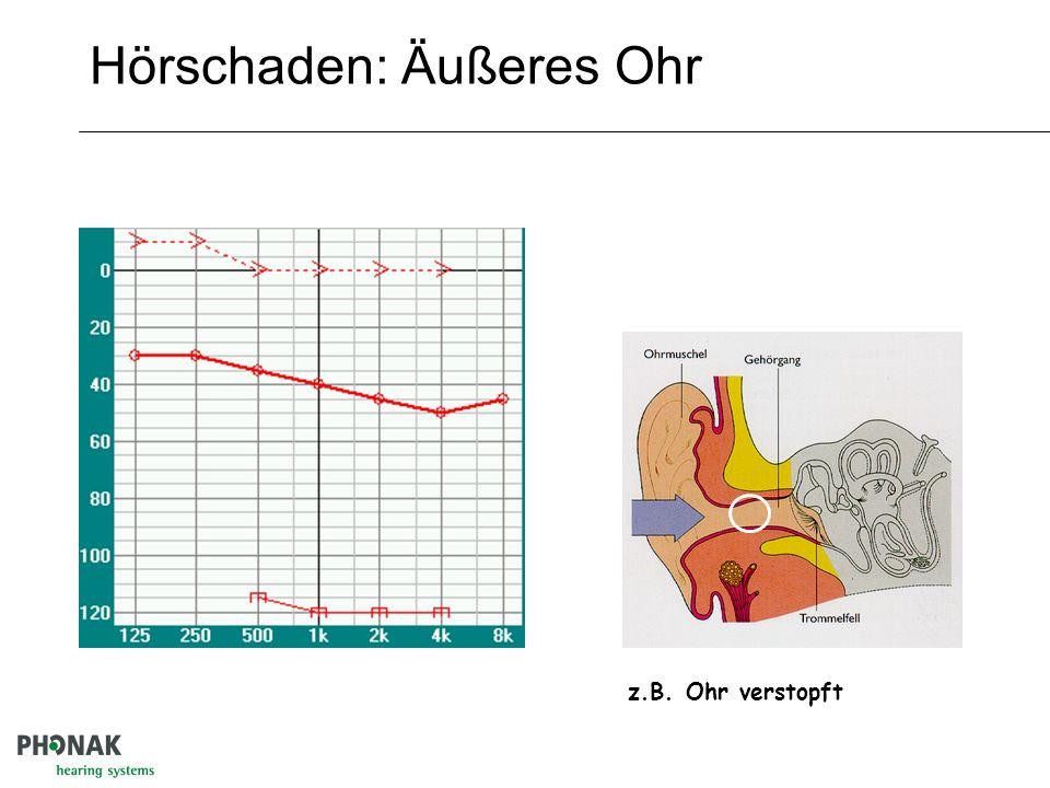 Hörschaden: Äußeres Ohr