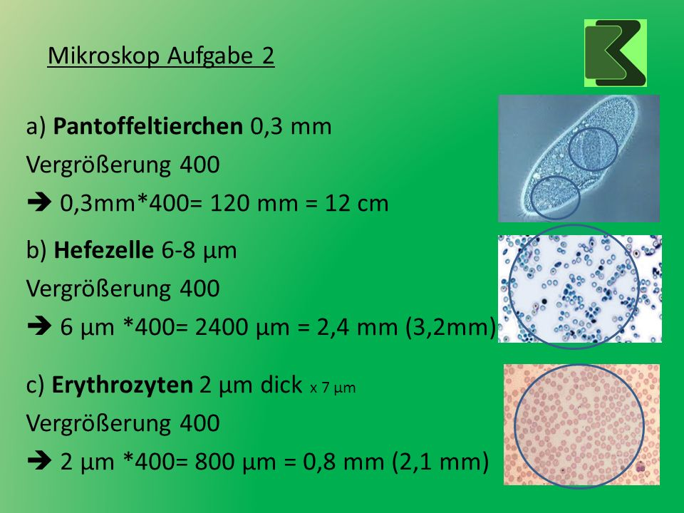 Mikroskop Aufgabe 2 a) Pantoffeltierchen 0,3 mm. Vergrößerung 400.  0,3mm*400= 120 mm = 12 cm. b) Hefezelle 6-8 µm.