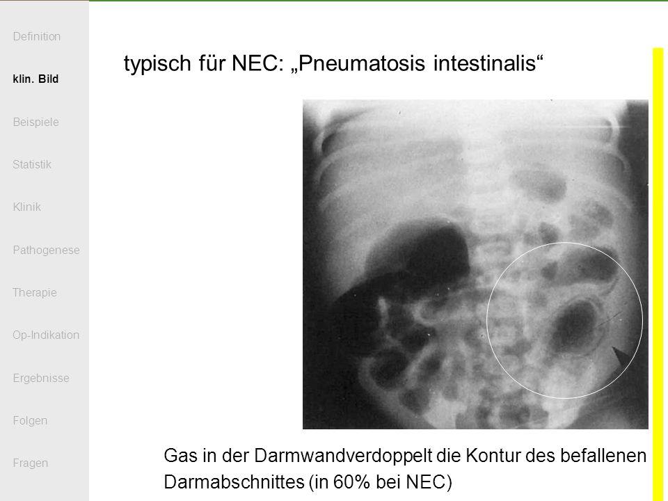 """typisch für NEC: """"Pneumatosis intestinalis"""