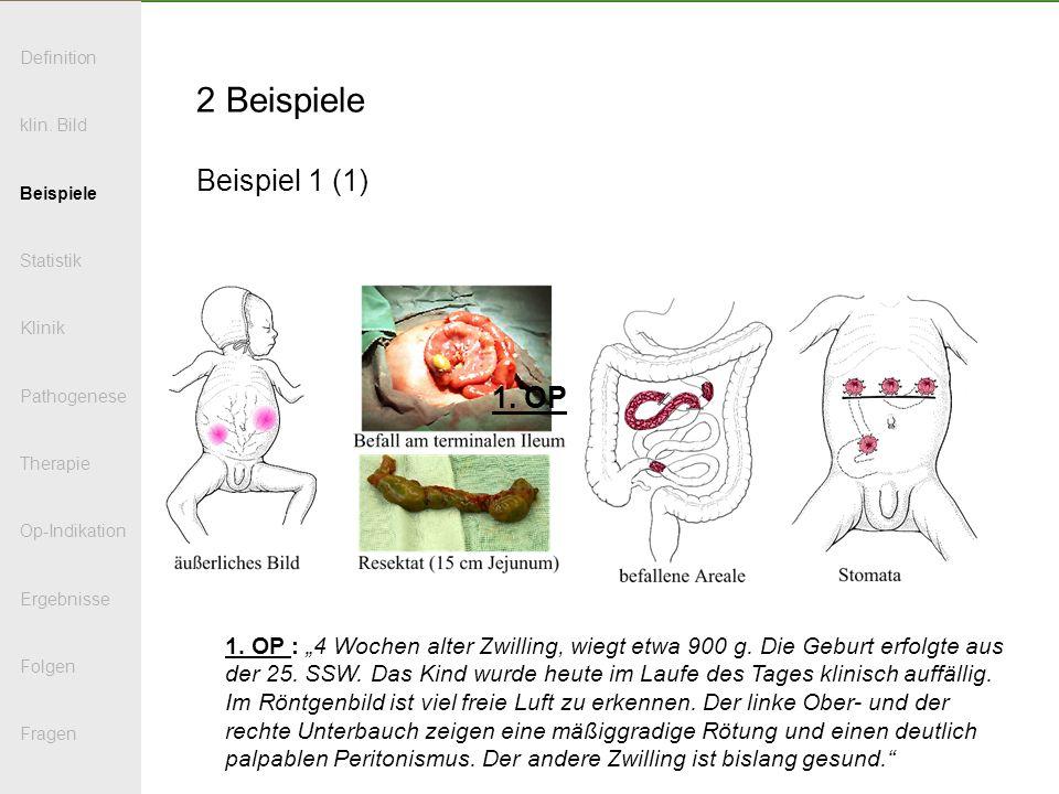2 Beispiele Beispiel 1 (1) 1. OP