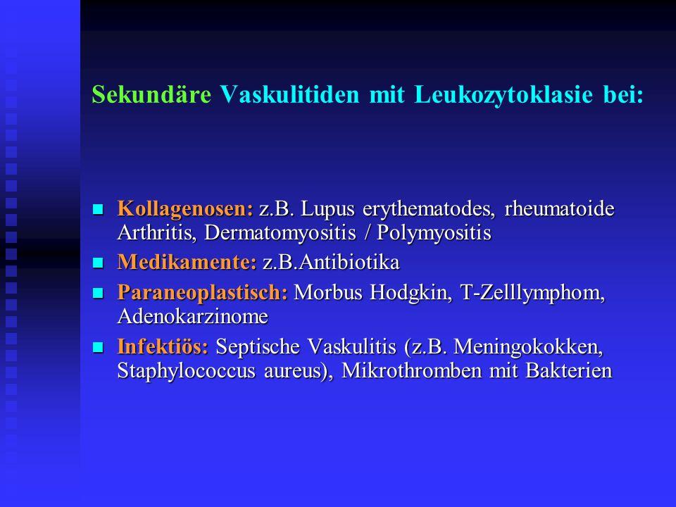 Sekundäre Vaskulitiden mit Leukozytoklasie bei: