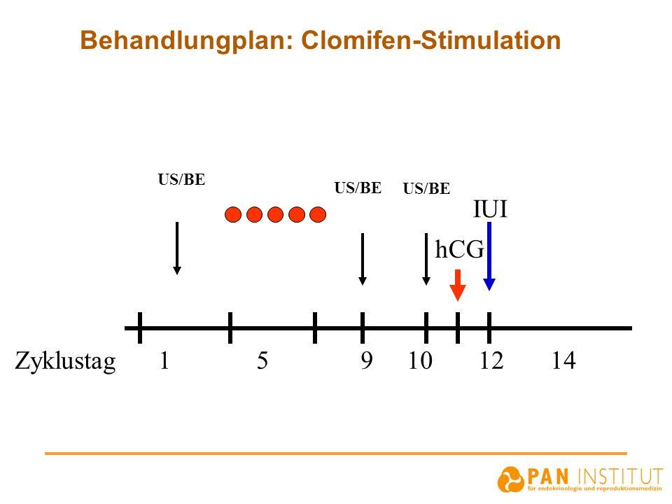 Behandlungplan: Clomifen-Stimulation