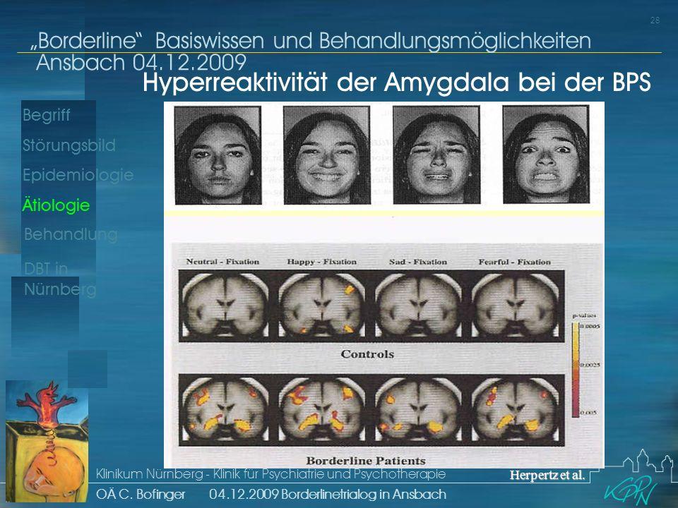 Hyperreaktivität der Amygdala bei der BPS
