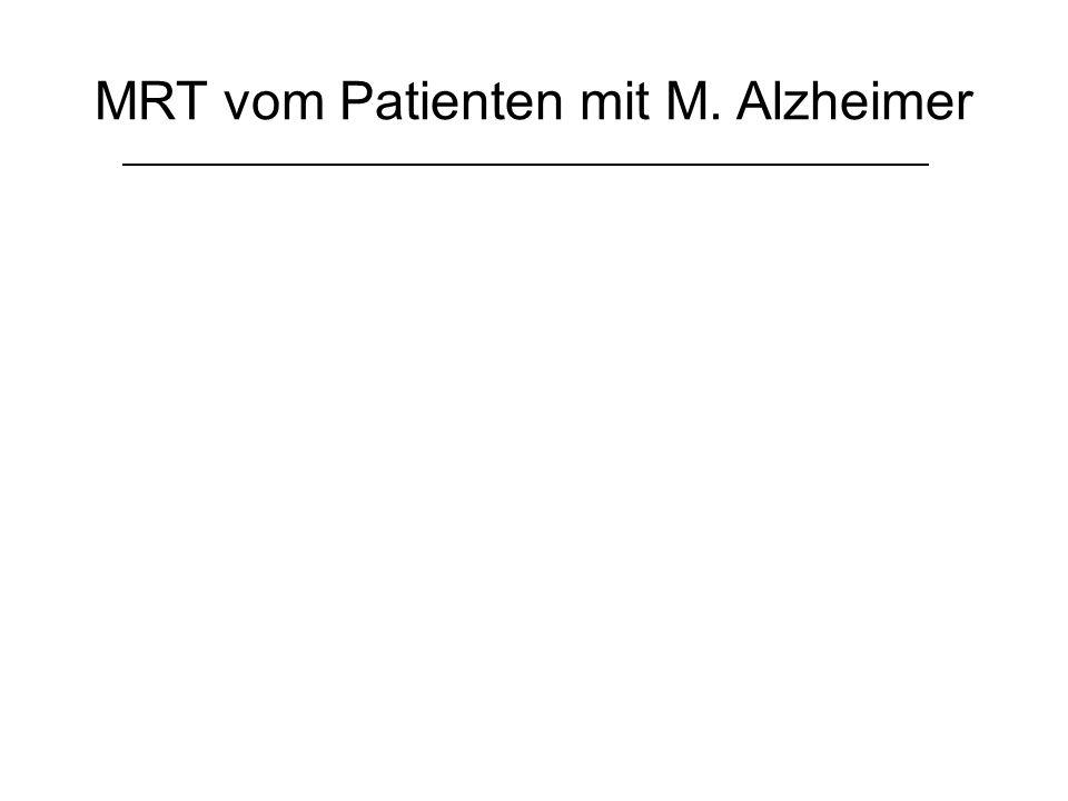 MRT vom Patienten mit M. Alzheimer
