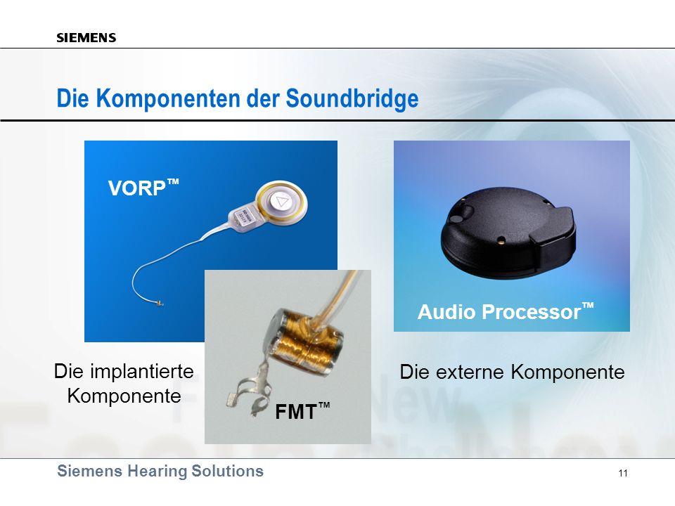 Die Komponenten der Soundbridge