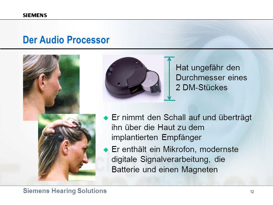 Der Audio Processor Hat ungefähr den Durchmesser eines 2 DM-Stückes